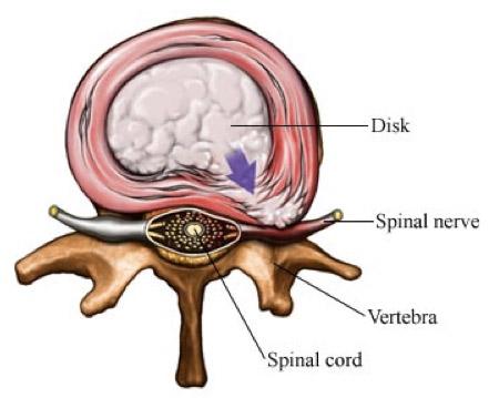 Дисковите хернии обикновено са резултат на износване на дисковете, най-вече при тежък физически труд.