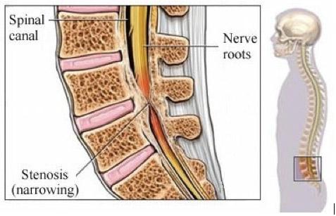 Спинална стеноза /Гръбначна стеноза/