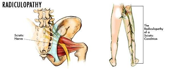 Изтръпване на пръстите на краката | Симптом